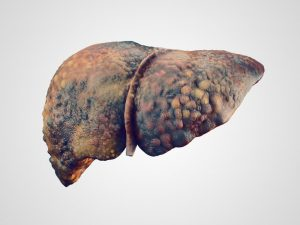 Liver Disease Due To Alcoholism
